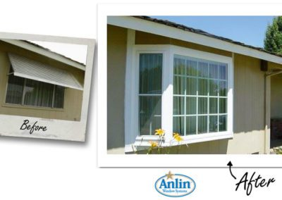 Anlin_Before-After-14