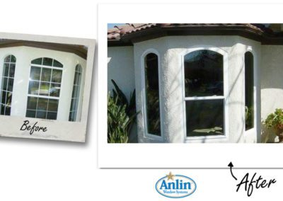 Anlin_Before-After-15